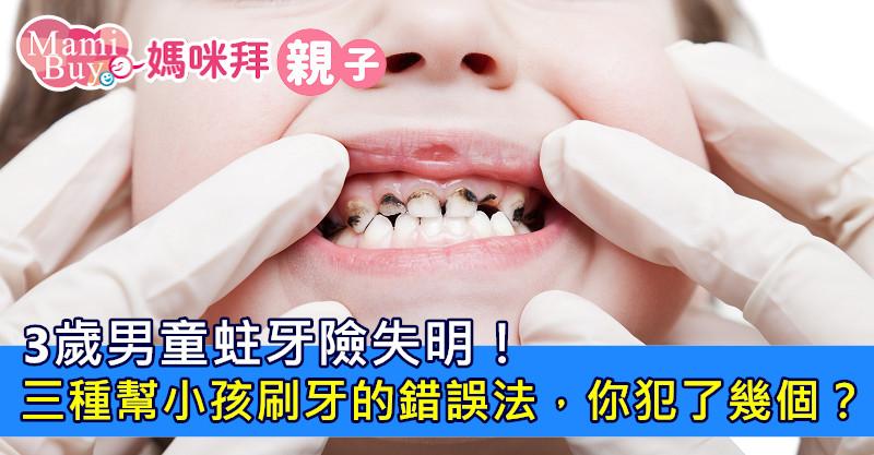 3歲男童蛀牙險失明!三種幫小孩刷牙的錯誤法,你犯了幾個?